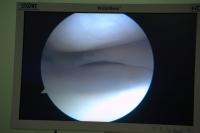 Артроскопическая картина мениска