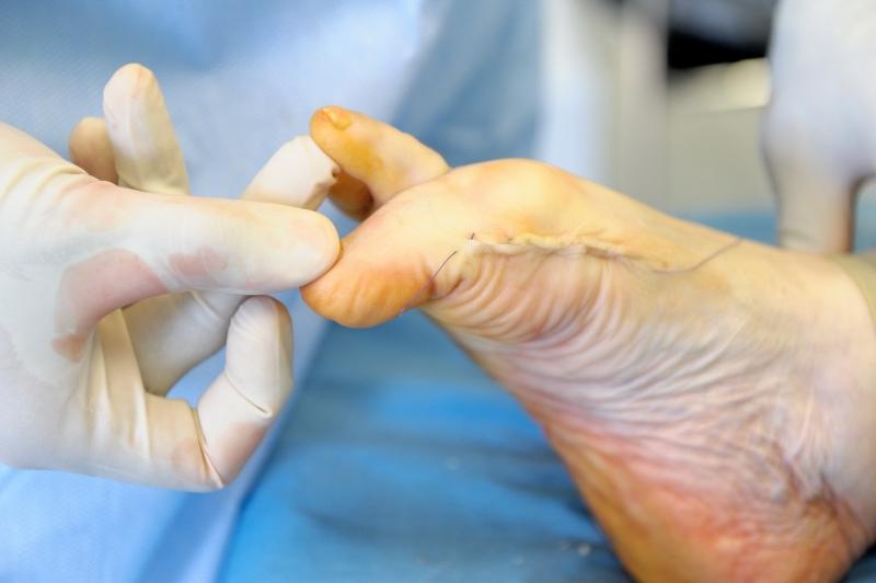 Шишки на ногах у большого пальца операция