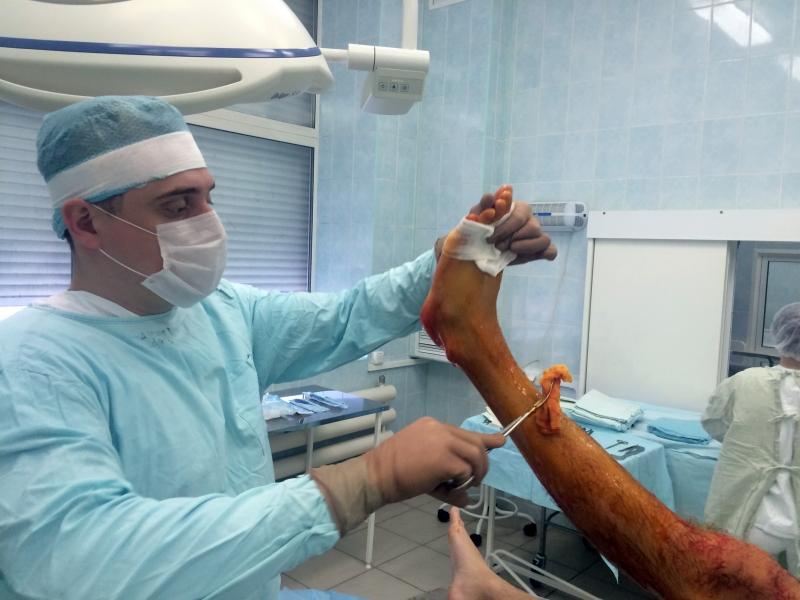 Перелом лодыжки. Лечение перелома лодыжки со смещением ...