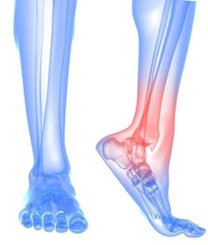 Артродез правого голеностопного сустава боли в суставе кисти руки