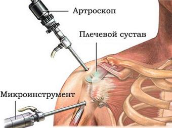 Аперациия на плечевой сустав лечение артроза тазобедренного сустава