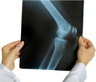 Артроз коленного сустава симптомы и лечение