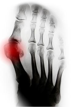 Артроз плюсневых суставов от костного фрагмента из чего состоит плечевой сустав