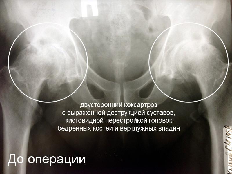 операции двусторонний коксартроз