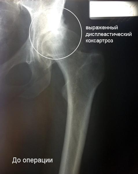 Коксартроз тазобедренного сустава эндопротезирование дарсонваль на сустав