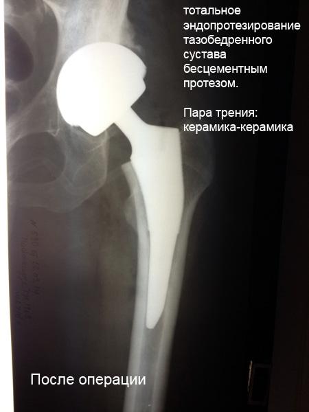 Где делают эндопротезирование тазобедренного сустава вживление инплантанта в тазобедренный сустав