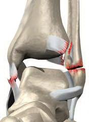 Голеностопный сустав перелом лечение боль во всех суставах усиливается на холоде