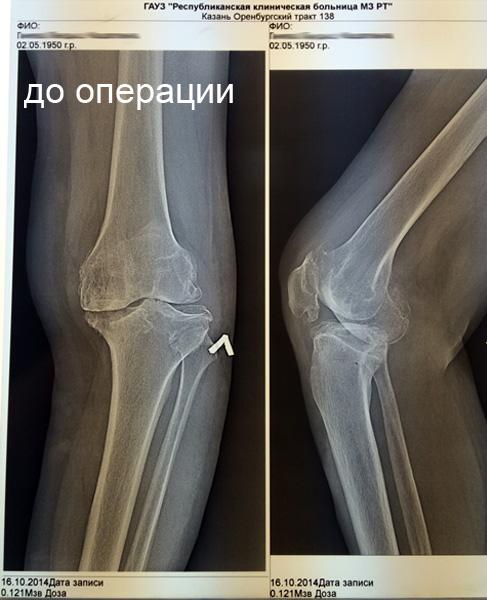 Операция при гонартрозе коленного сустава болят суставы после физической нагрузки