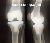 После операции. Пациент Л. 64 года. Выполнено эндопротезирование коленного сустава