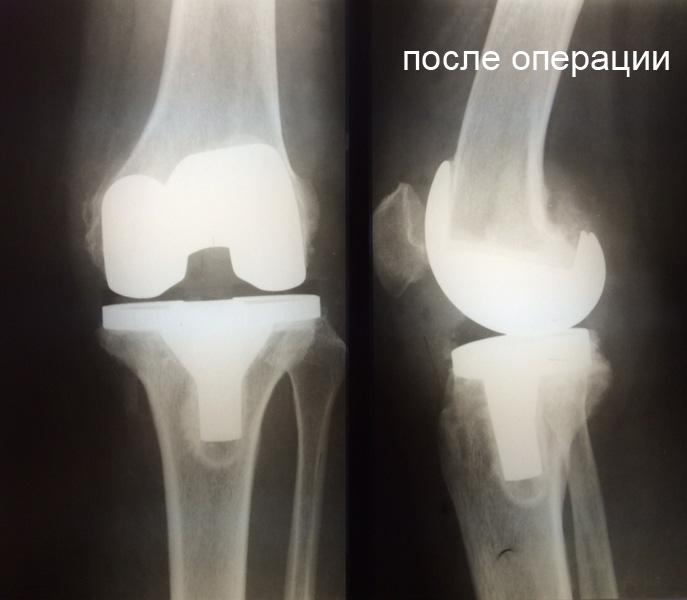 Эндопротез коленного сустава диагноз постоянно немеет правая рука и правая нога.и хрустят суставы