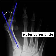 Халюс вальгус хирургическое лечение