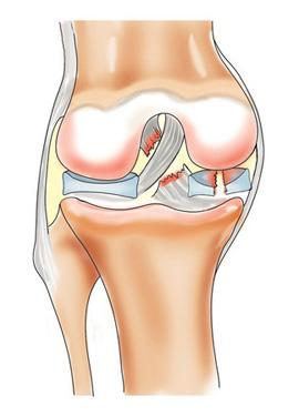 Ортопедические заболевания коленных суставов заговорить суставы древними заговорами