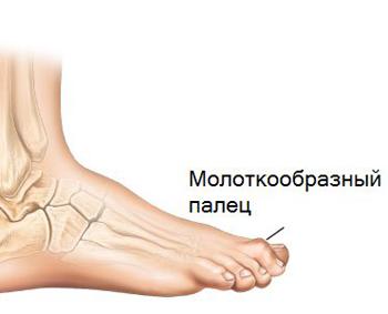 Молоткообразная деформация пальцев стопы