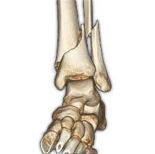 3D реконструкция перелома голени
