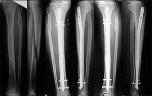 Перелом голени рентген