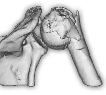 Перелом шейки плеча 3d реконструкция
