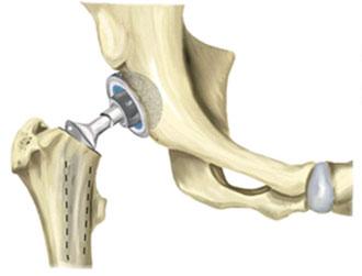 установленный эндопротез шейки бедра