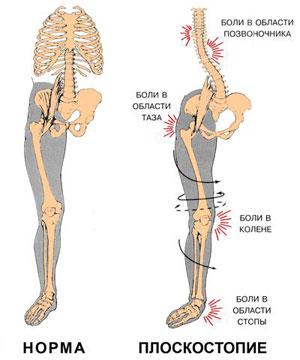 Поперечное плоскостопие. Причины и симптомы поперечного ...