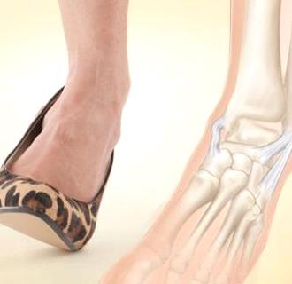 Порванные связки на ноге. Причины, симптомы и лечение порванных ...