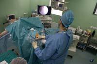 Артроскопическая ревизия коленного сустава