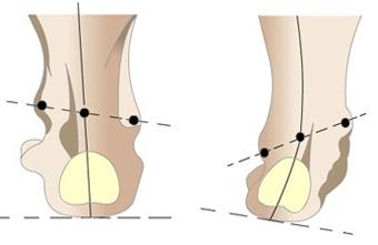 Лечение варусной деформации стопы