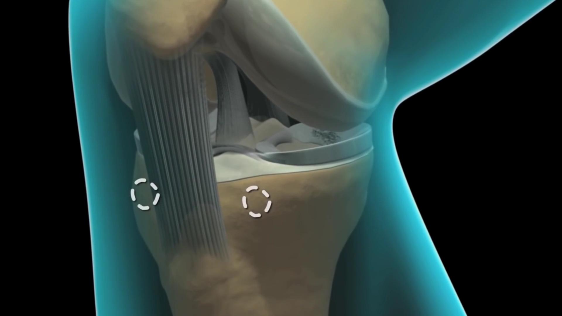 Артроскопия коленного сустава резекция медиального мениска болит тазобедренный сустав что делать